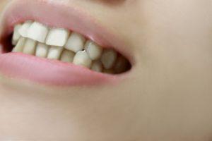 d75bbf1a58c37f115e8c1b398957d660 t 300x200 - ニオイ、歯並び、色の悪さを指摘される日本人 遅れたオーラルケア