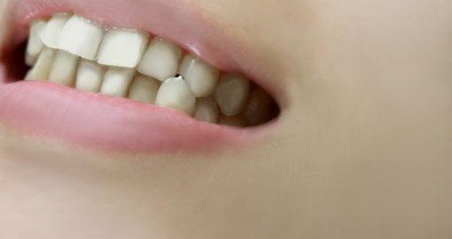d75bbf1a58c37f115e8c1b398957d660 t 510x270 - 【日本人の8割は要・歯列矯正 口臭も 医療費も減らせるオーラルケア!】