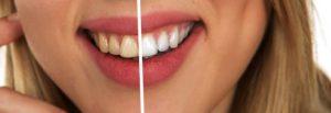 tooth 2414909  340 768x263 300x103 - 「プレオルソができなかった」子供の実例