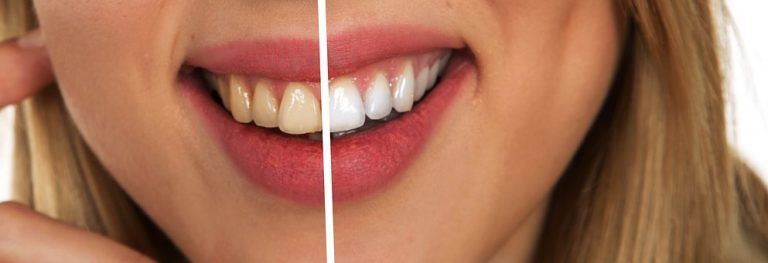 tooth 2414909  340 768x263 - tooth-2414909__340-768x263