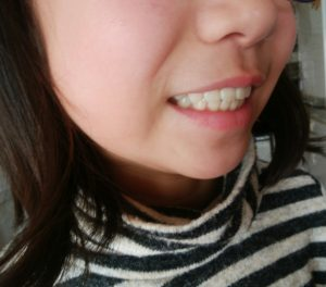IMG 20190204 103146 1 300x264 - プレオルソの子供の費用「歯科」により差がある。実際の金額を比較した