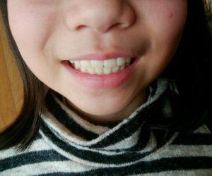 IMG 20190204 103645 300x250 - 【プレオルソの効果 「後戻り」がない 他の歯列矯正と違う】