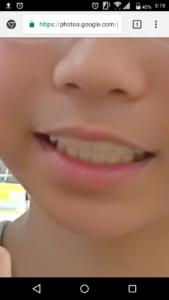 Screenmemo 2018 09 07 09 19 43 169x300 - 娘以外にもいた!「プレオルソで成功した子供の症例」を紹介