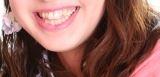 240b5d20b4d806540e69bcd9f05cdd8d - 歯並び