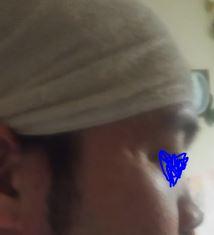 .jpg - これから鼻筋を通す男性